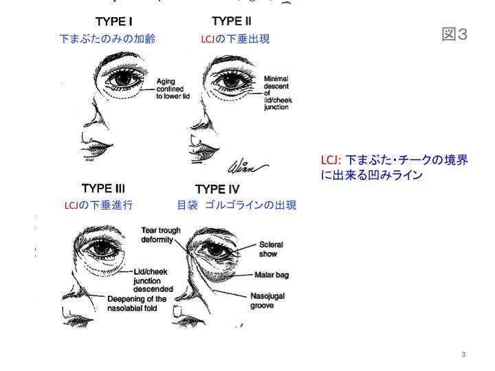 目の凹みスライド03.jpg