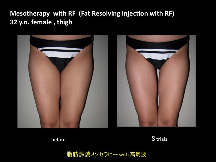 meso thigh .jpg