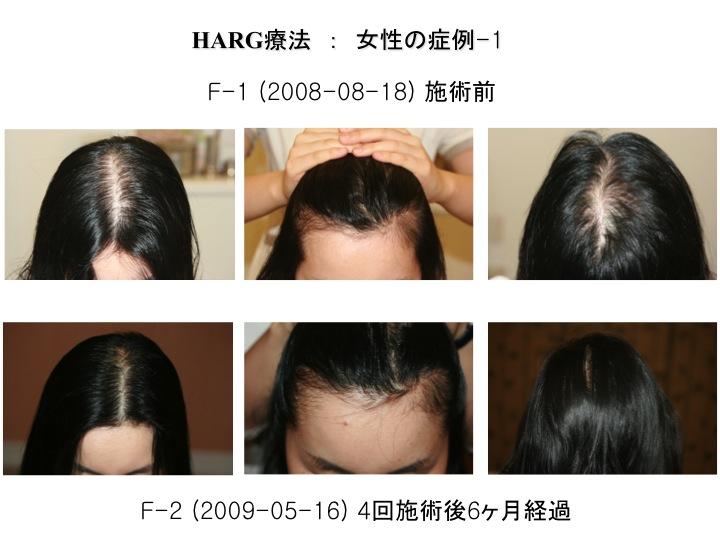 HARG女性1.jpg