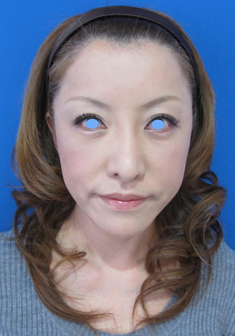 e PPP shibayama 3W.jpg