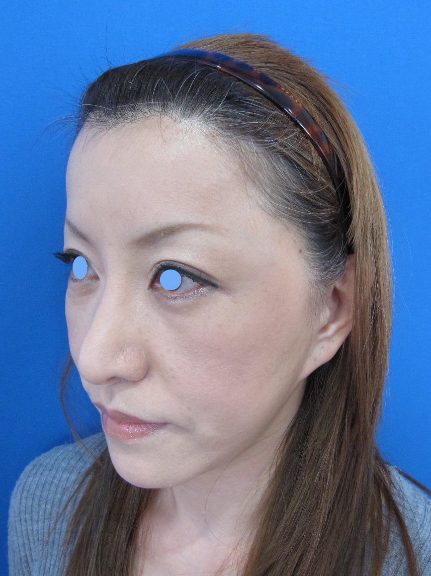 e PPP shibayama lt.jpg