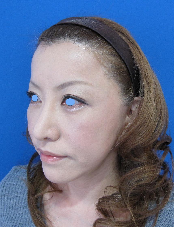 e PPP shibayama lt 3W.jpg