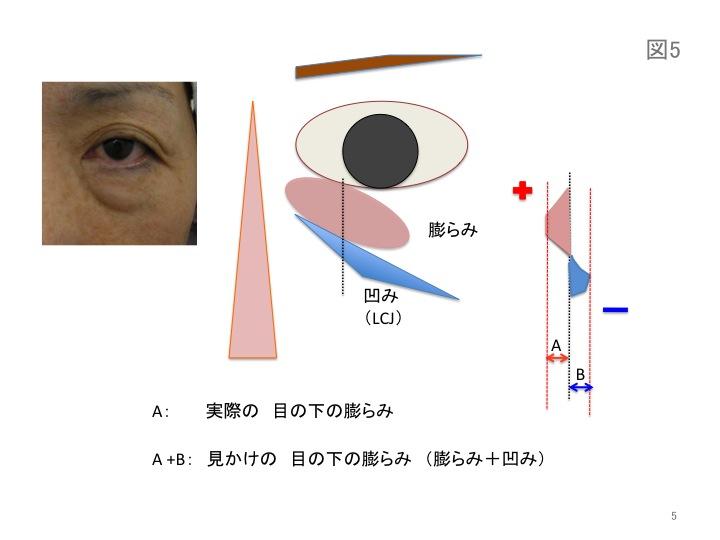 目の凹みスライド05.jpg