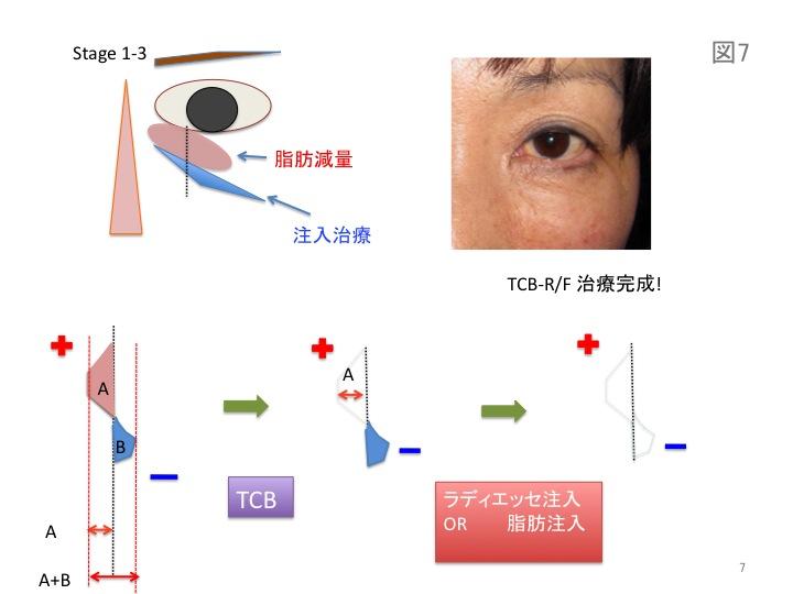 目の凹みスライド07.jpg