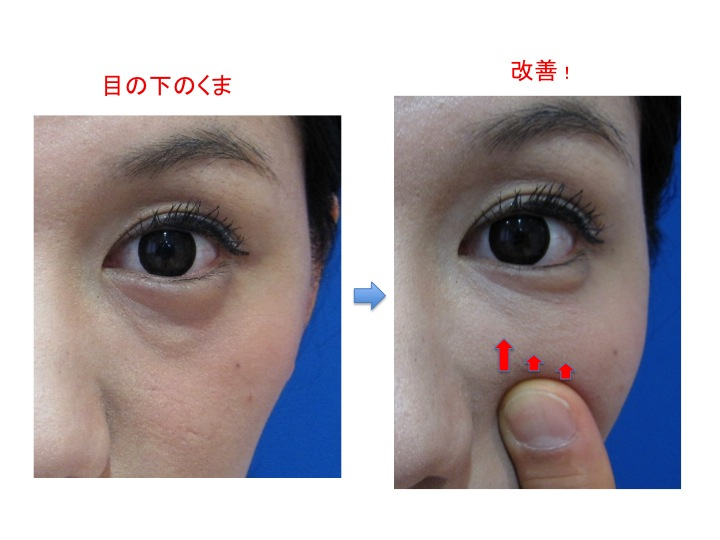 目の下2スライド1.jpg