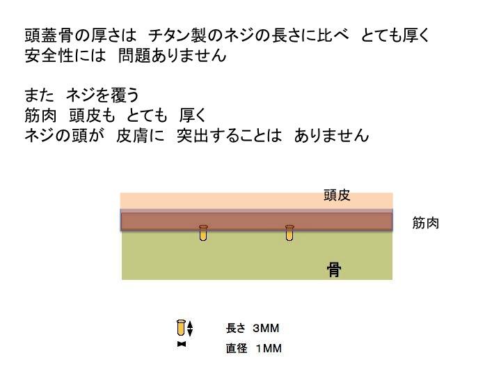 TPL シェーマスライド2.jpg