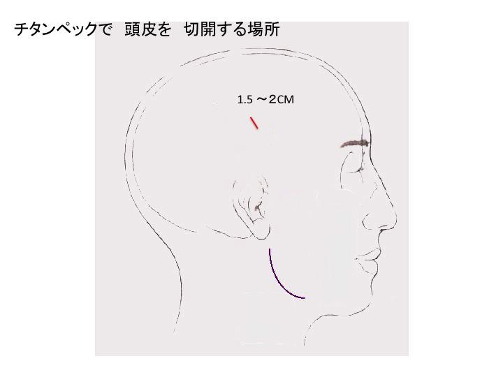 TPLシェーマスライド1.jpg