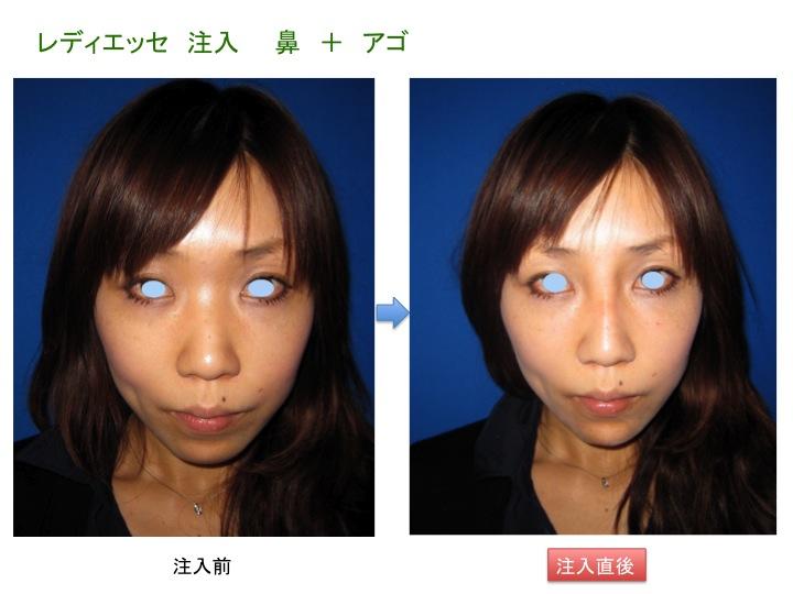 HAPスライド1.jpg