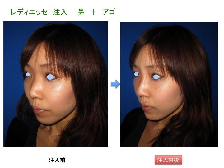 HAPスライド2.jpg