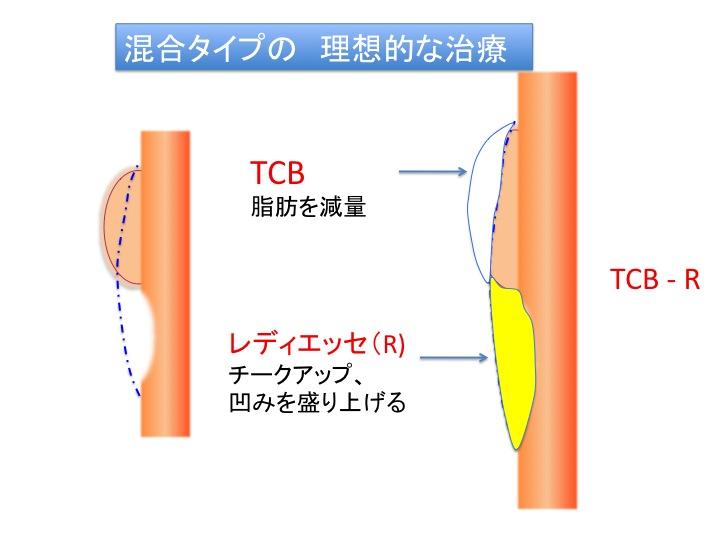 目の下治療シェーマ7.jpg