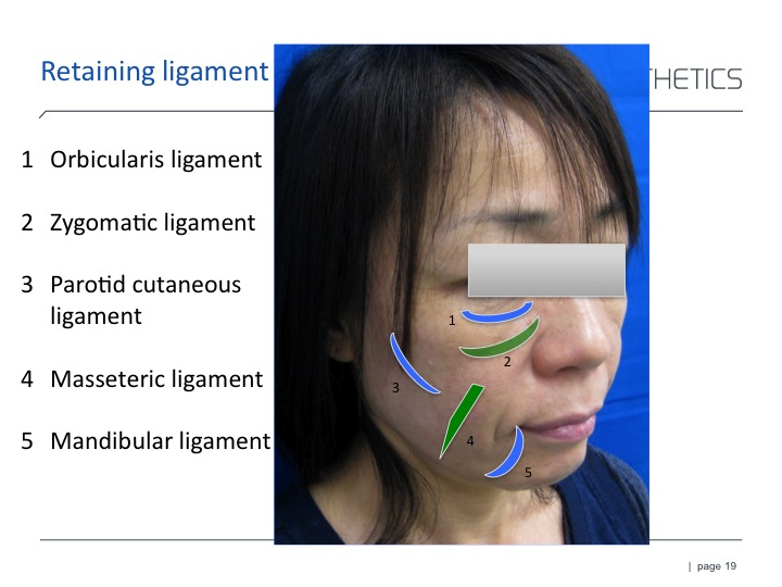 RAD ligament.jpg