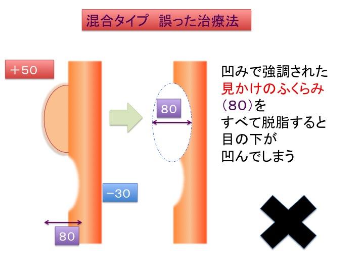 目の下治療シェーマ3.jpg