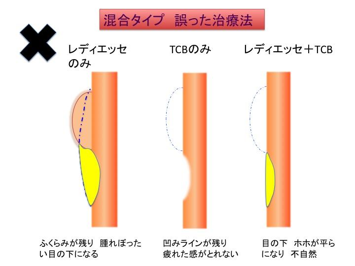 目の下治療シェーマ6.jpg