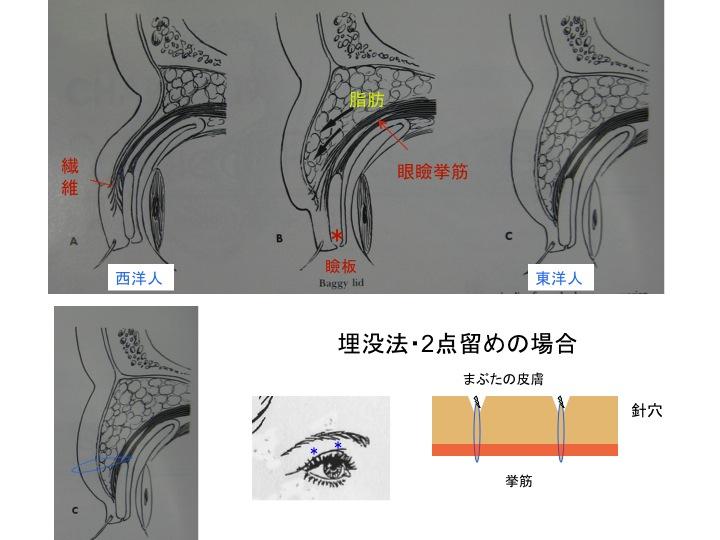 二重図解.jpg