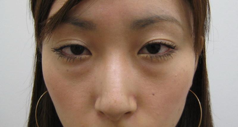 目の下 腫れ