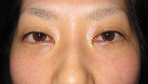 目の下のたるみ、目のくまでお悩みの方、切らずに完璧に解決します。TCB-R法 手術直後 症例写真